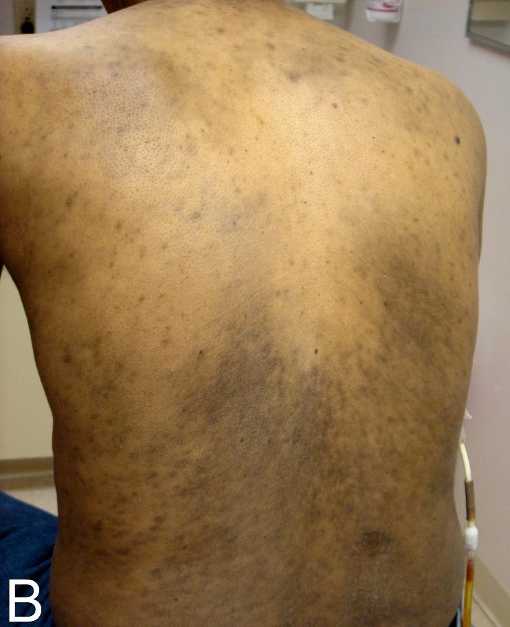 taches brunes sur le corps maladie